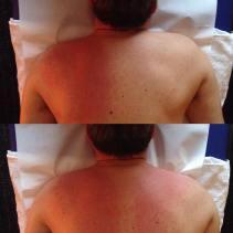 effetti massaggio spalla