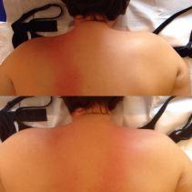 effetti massaggio spalla_1