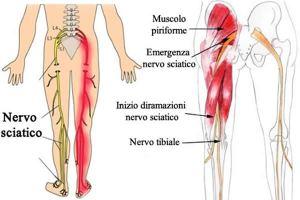 cause-sciatica